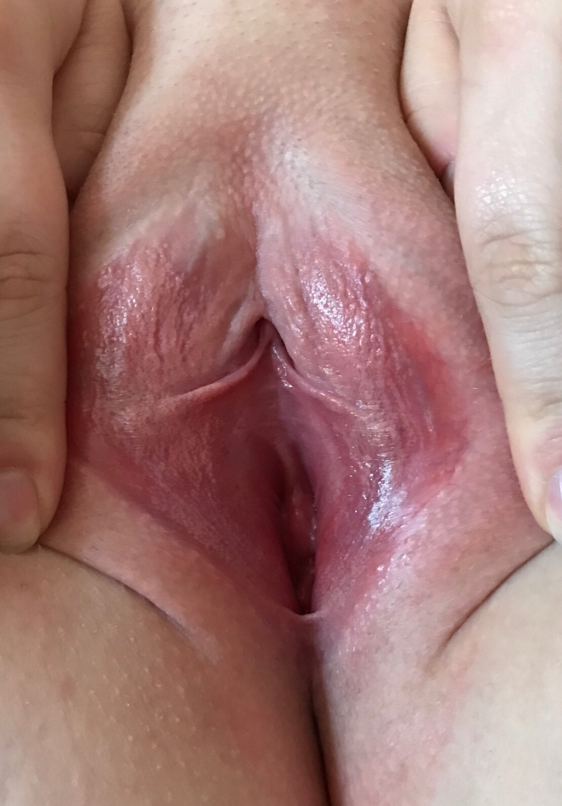 Vaginal itching dryness