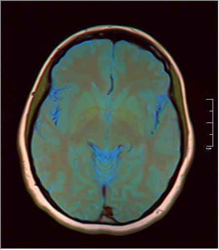 Brain MRI 0035 11 t1 pd t2 41f.jpg