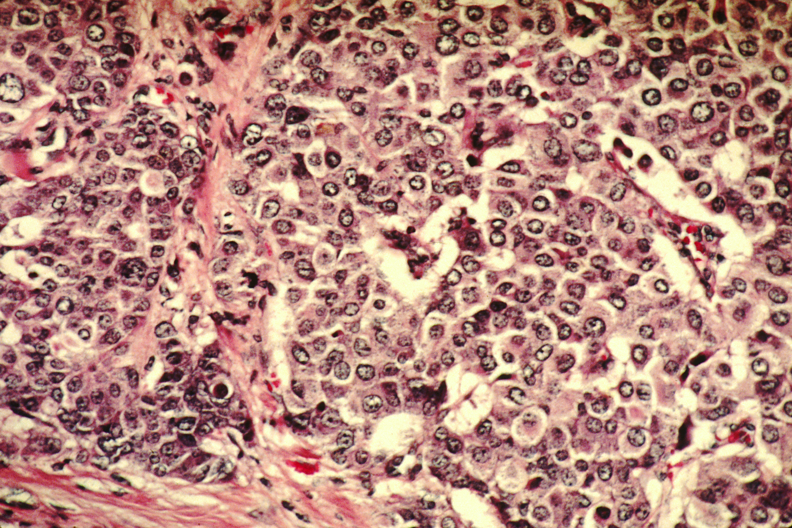List of breast cancer cell lines - Wikipedia