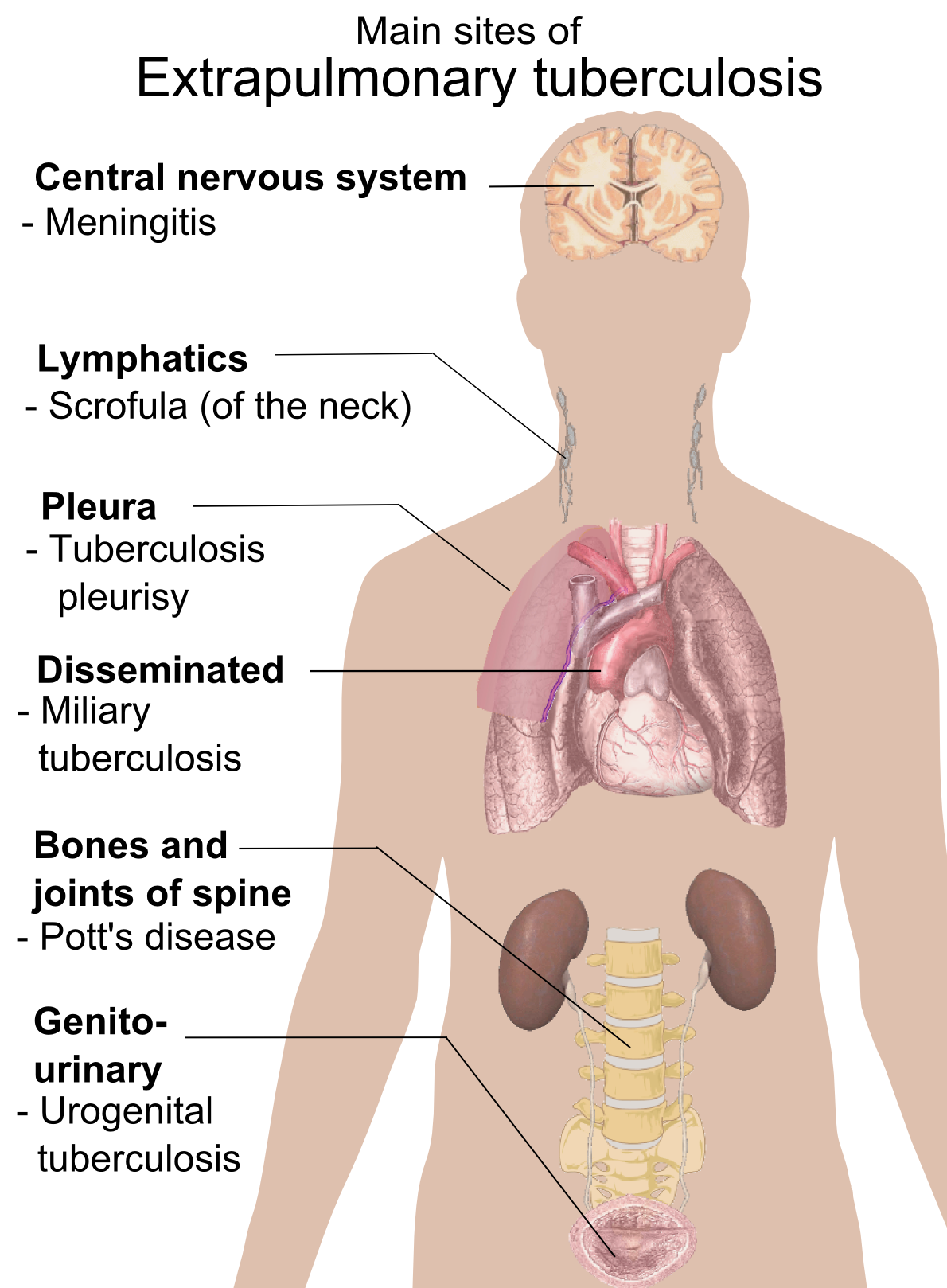 http://upload.wikimedia.org/wikipedia/commons/4/49/Extrapulmonary_tuberculosis_symptoms.png