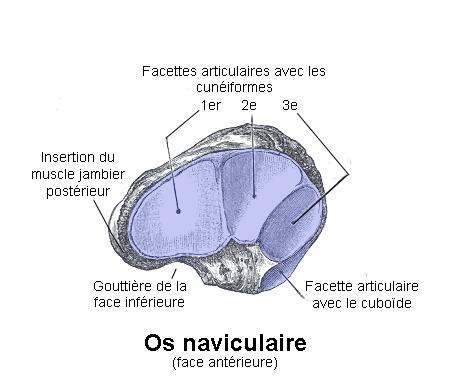 Fracture de l'Os Cuboïde