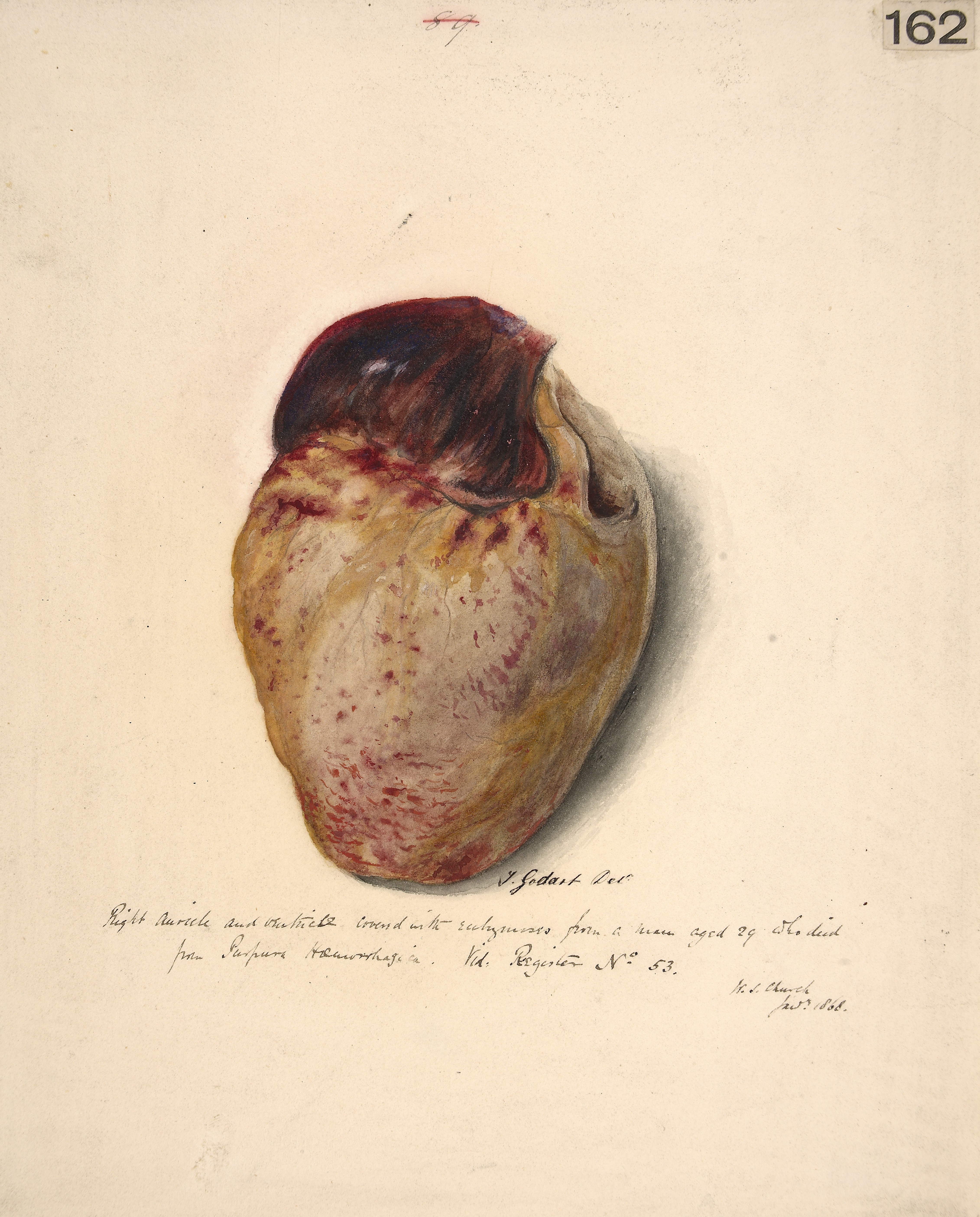 Fileright Auricle And Ventricle Of The Heart Wellcome L0061488g