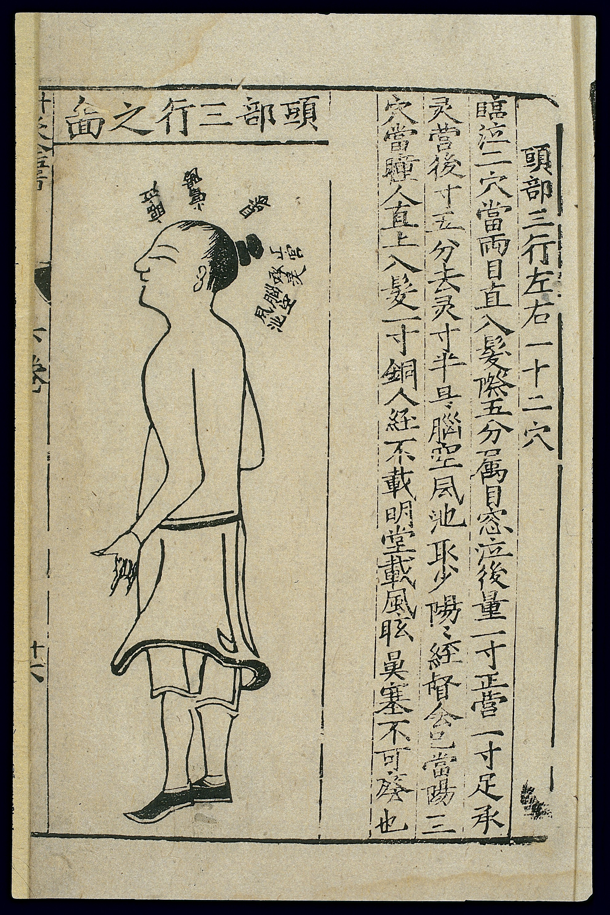 Head Size Conversion Chart: Acupuncture chart third head line Chinese woodcut Wellcome ,Chart
