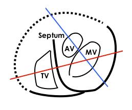 heart valve wikipedia : heart valves diagram wiki - findchart.co