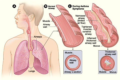 Asthma attack-illustration NIH