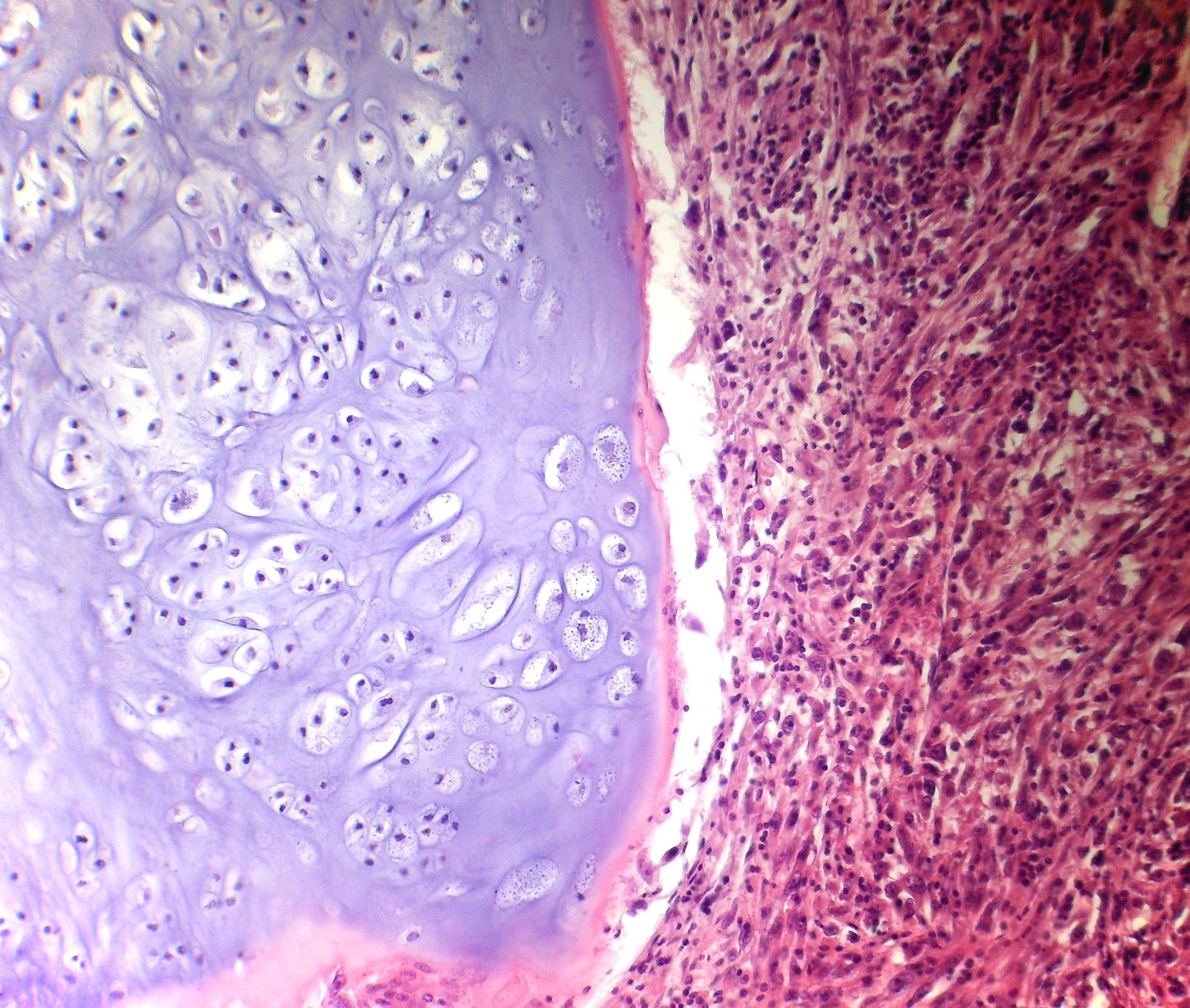 File Bone Chondrosarcoma Dedifferentiated Pa Copy Jpg