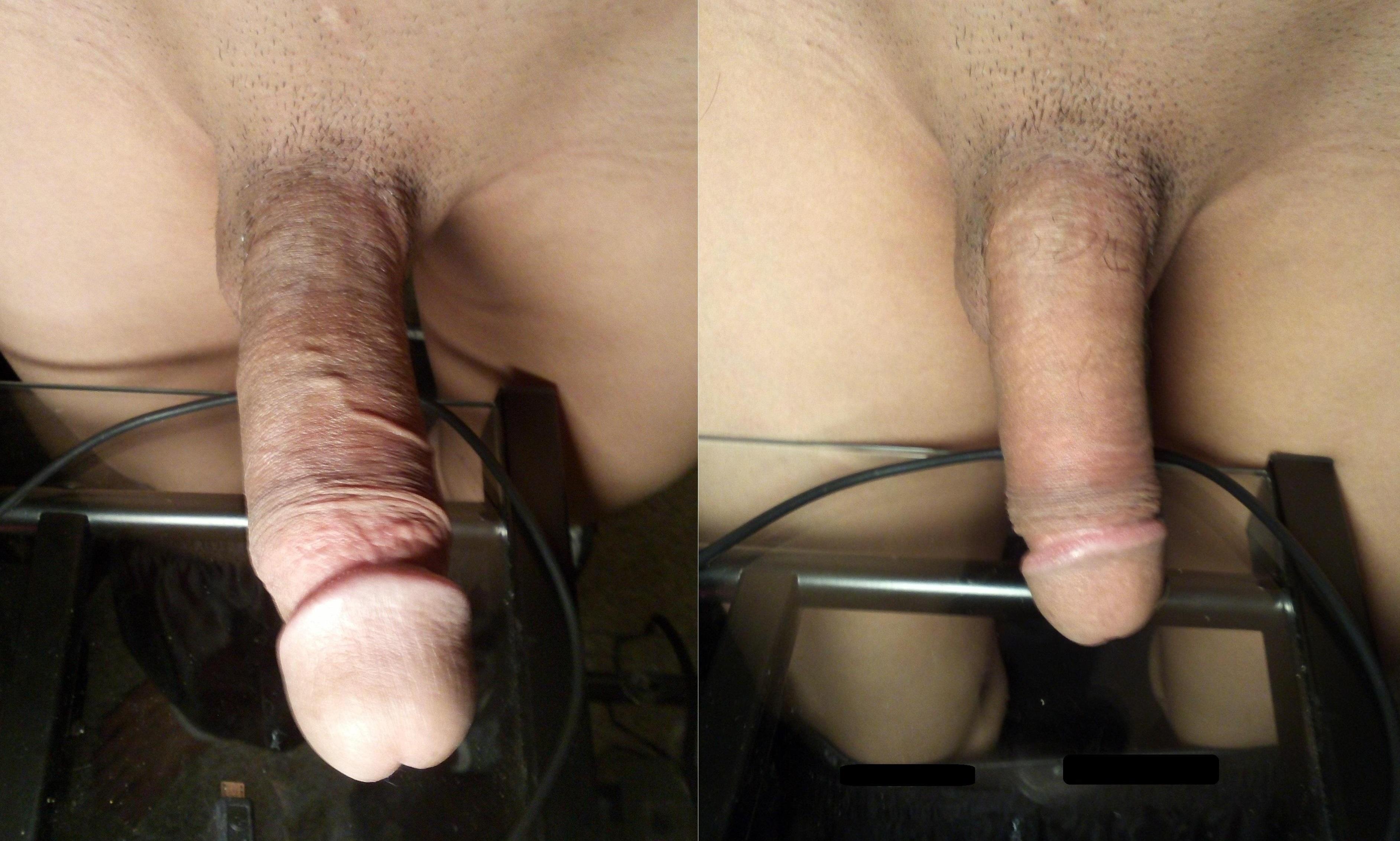 Penis pic forum