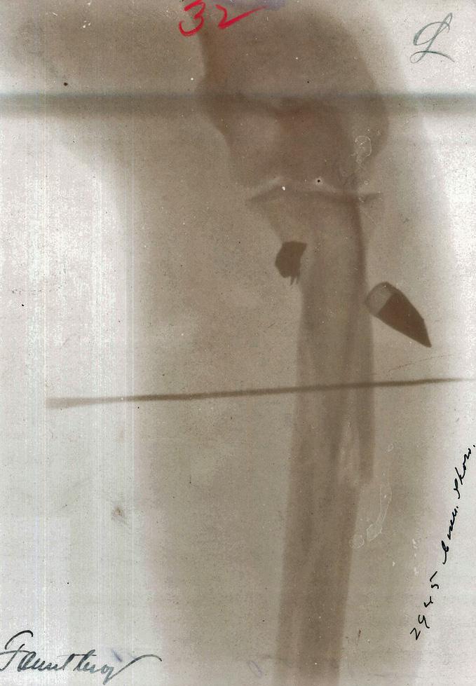 File radiographie d une blessure de guerre 224 la jambe par balle de