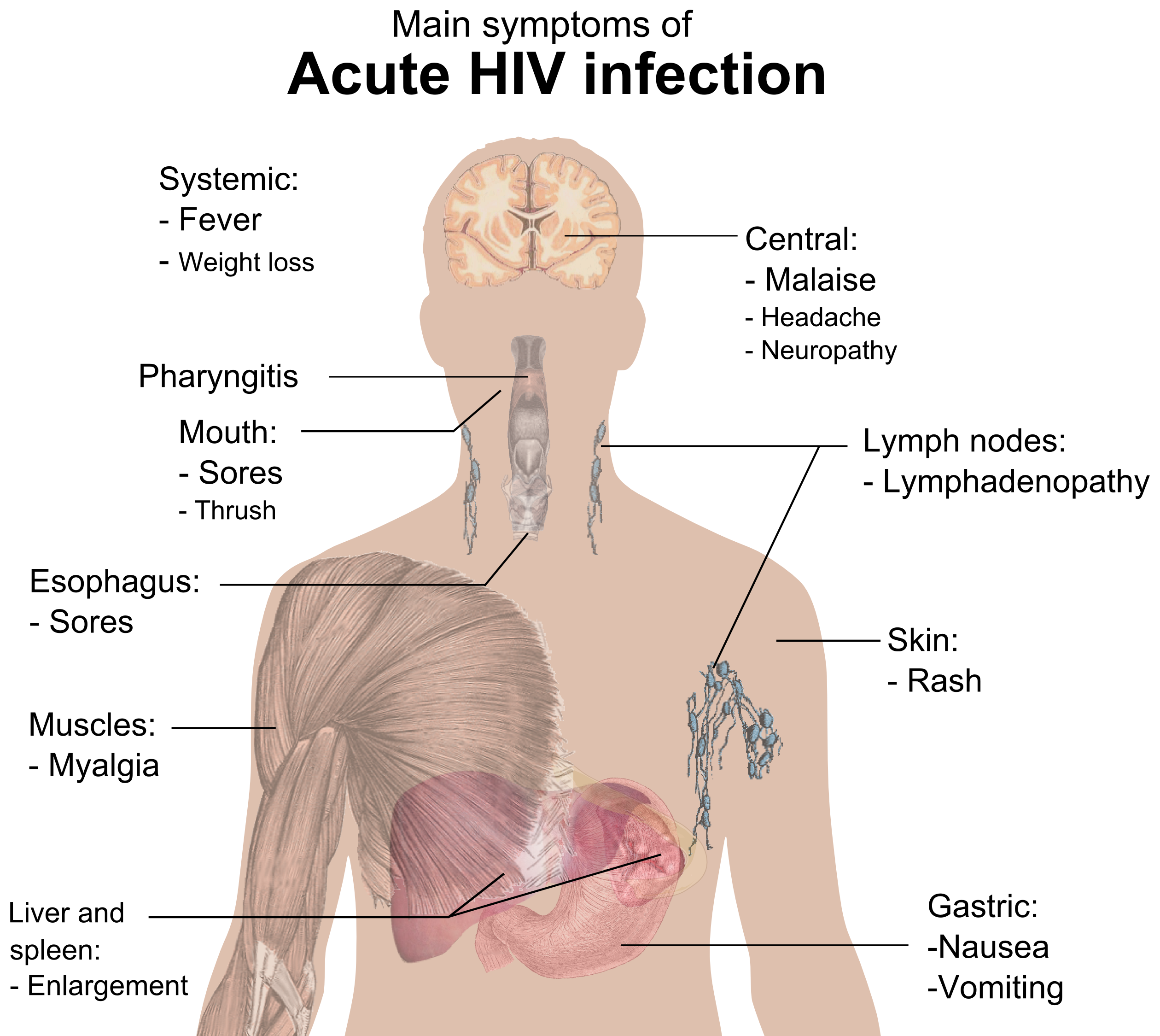 hiv signs and symptoms Hiv signs and symptoms - get tested at home with the most accurate hiv home test kit ships worldwide and nationwide in the philippines accurate hiv test.