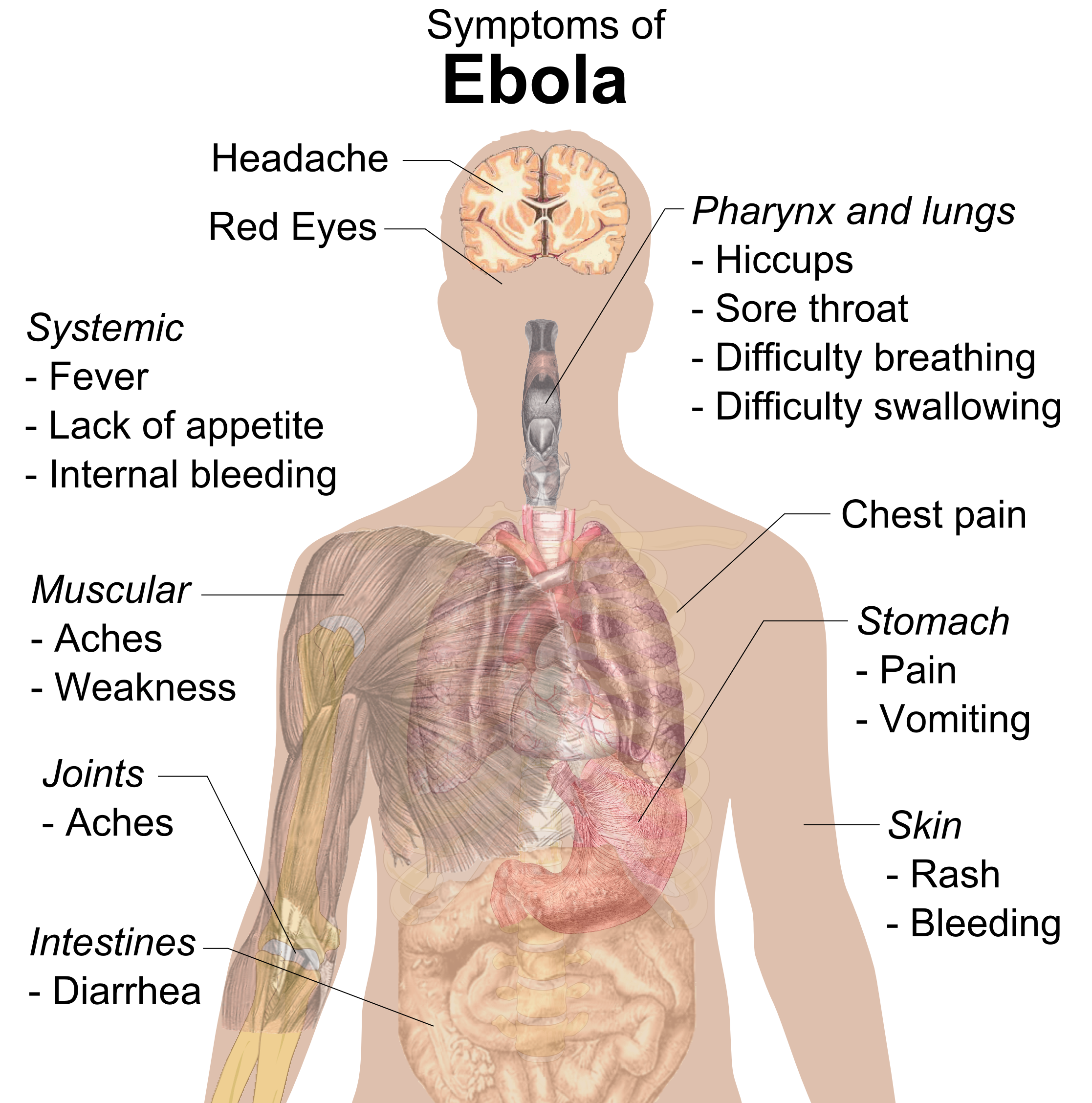 http://upload.wikimedia.org/wikipedia/commons/4/4a/Symptoms_of_ebola.png