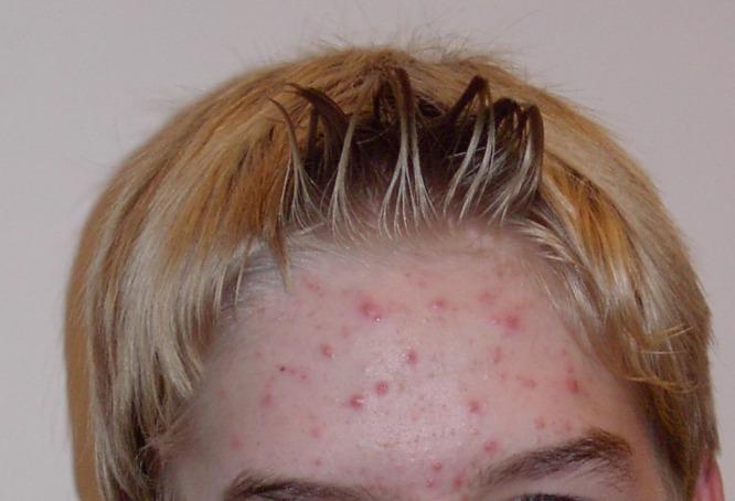 foto da página da acne da wikipedia