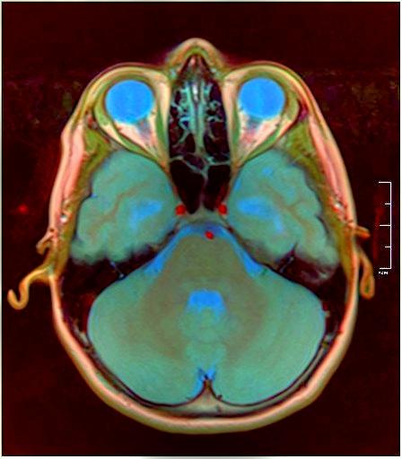 Brain MRI 0015 04.jpg