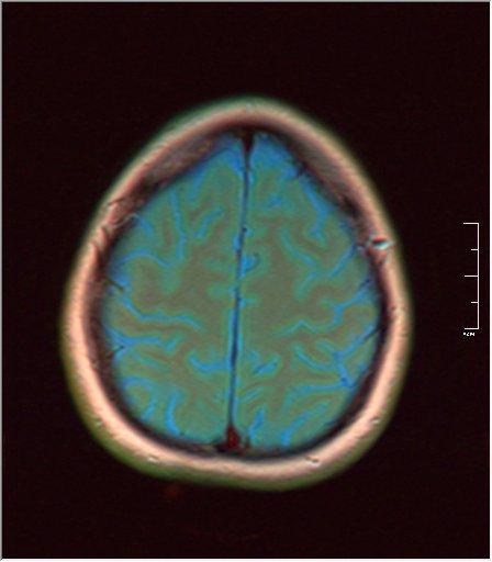 Brain MRI 0035 04 t1 pd t2 41f.jpg