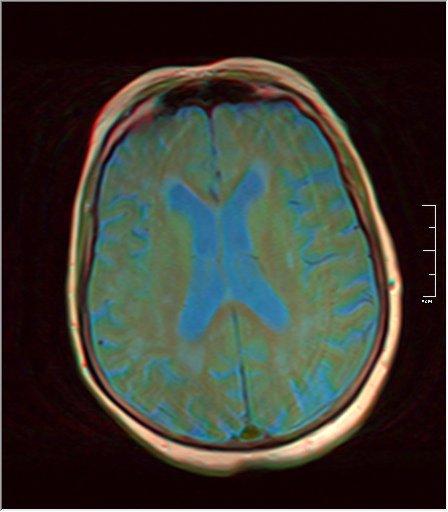 Brain MRI 0052 07.jpg