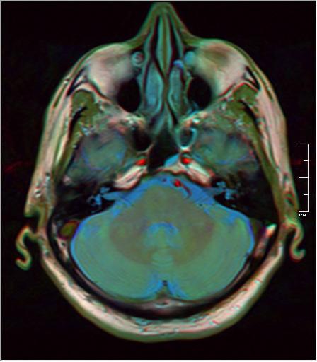 Brain MRI 293 16.png