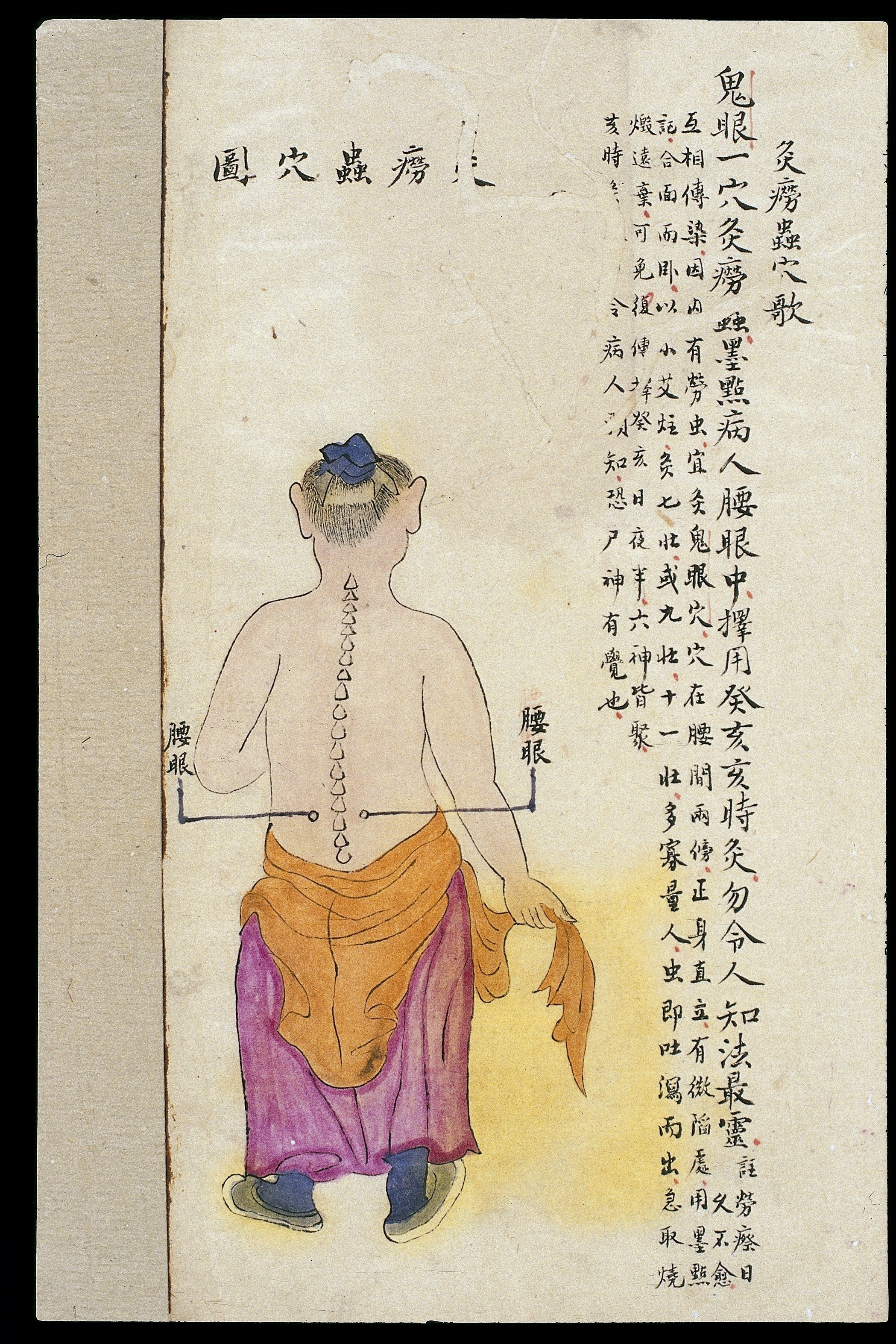 Trigger Points Chart: C19 Chinese MS moxibustion point chart; Yaoyan Wellcome ,Chart