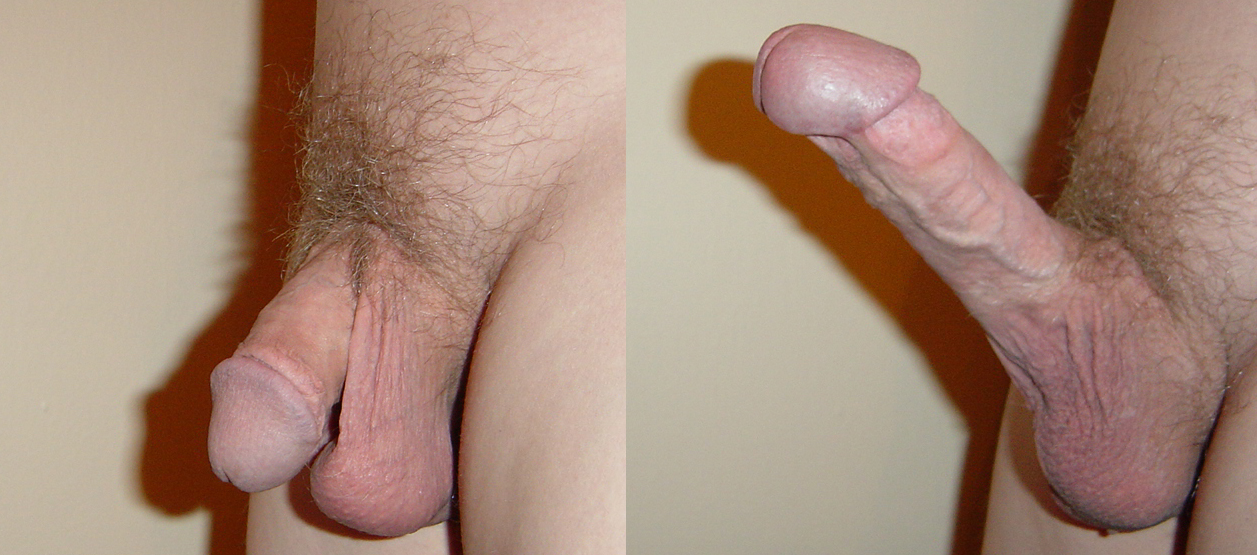 What is penile curvature