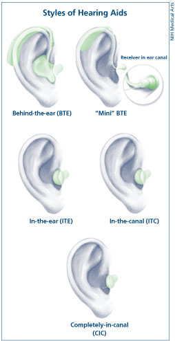 English: Image illustrating the different types of hearing aids. Retrieved from http://www.nidcd.nih.gov/health/hearing/hearingaid.asp on November 25th, 2007..