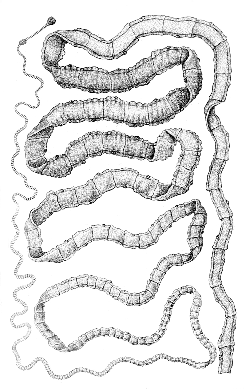 Taenia solium wikiwand pooptronica Image collections