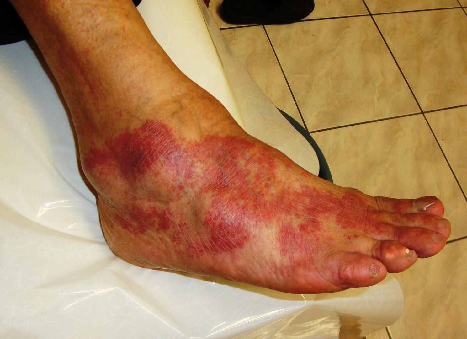 蜂窩 織 炎 後遺症