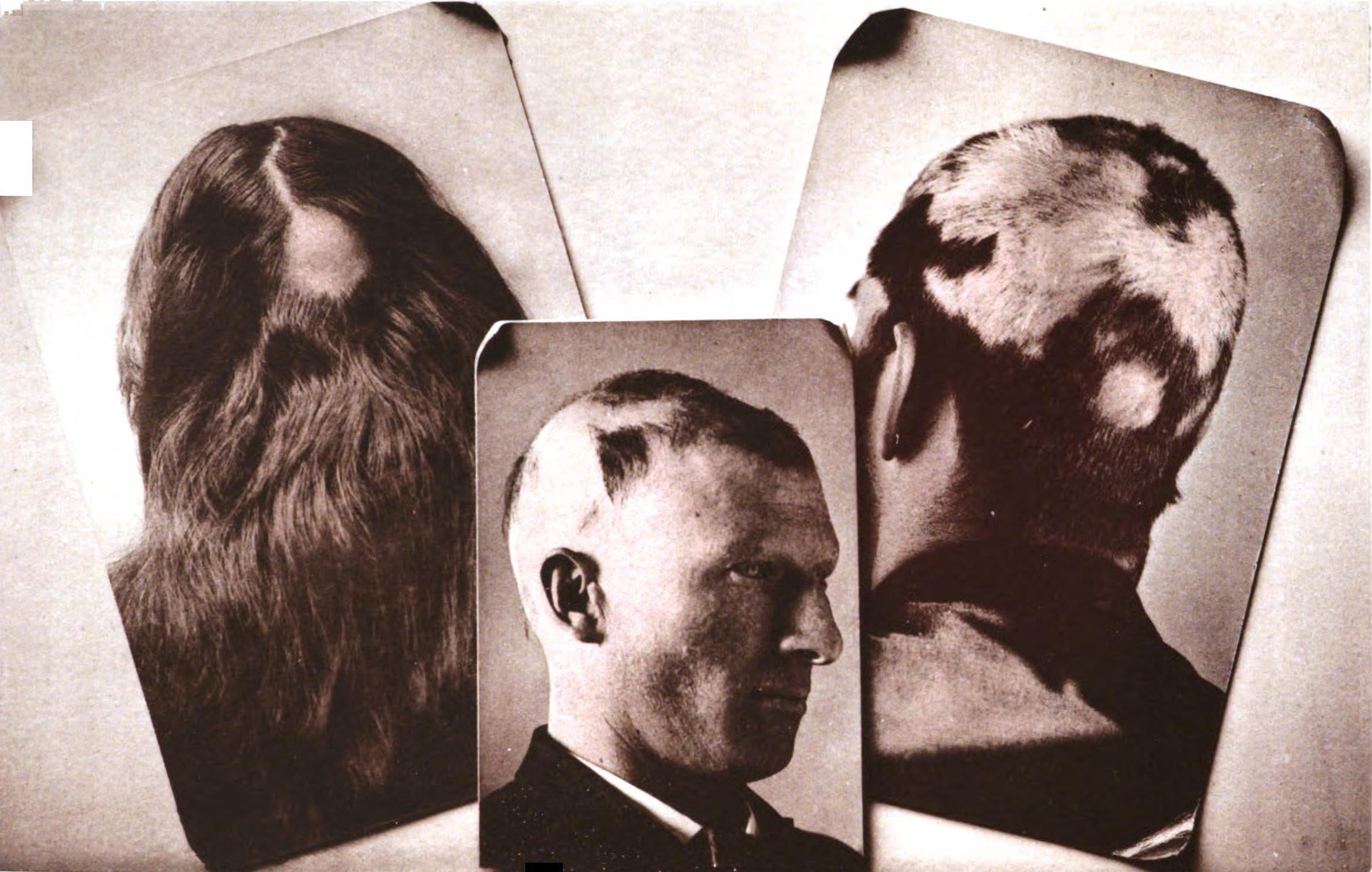 Description Alopecia areata.jpg