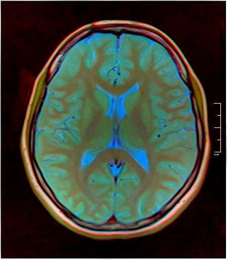 Color Brain MRI 0284 09.jpg
