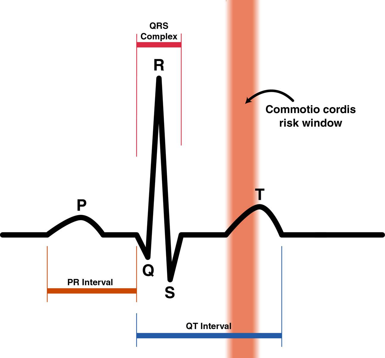 The Open Window Plot Diagram: Commotio Cordis Risk Zone.jpg - Wikimedia Commons,Chart