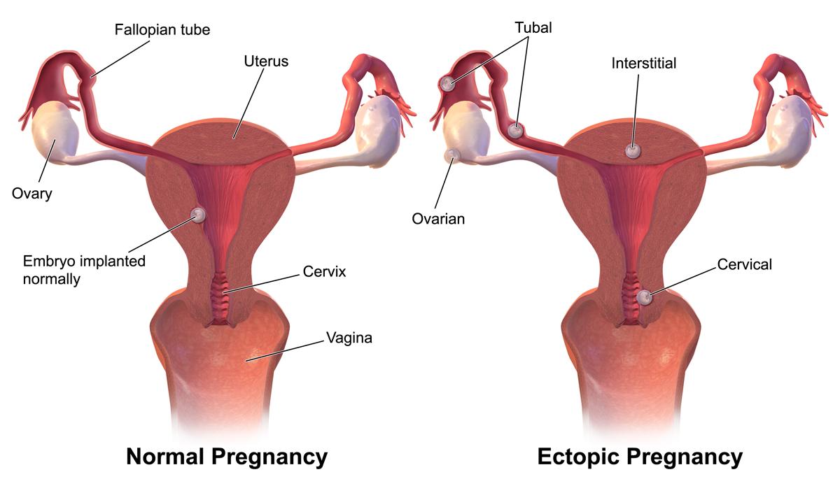 Ektopisk svangerskap – Wikipedia