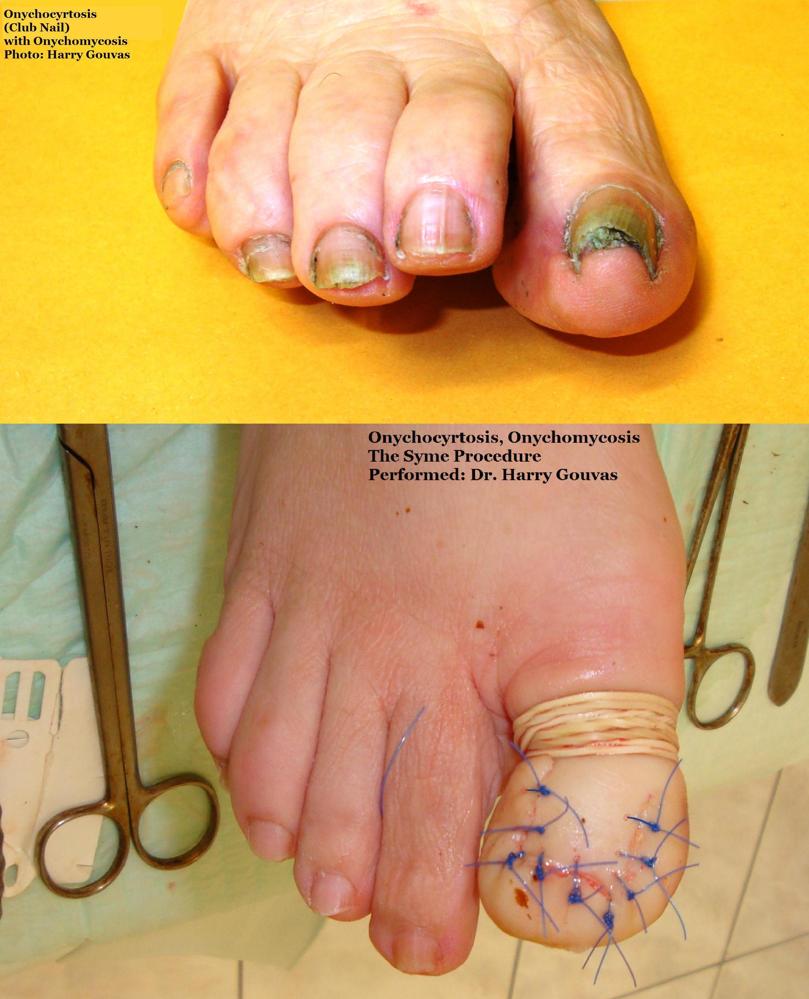 File:Onychocyrtosis (Club Nail).JPG