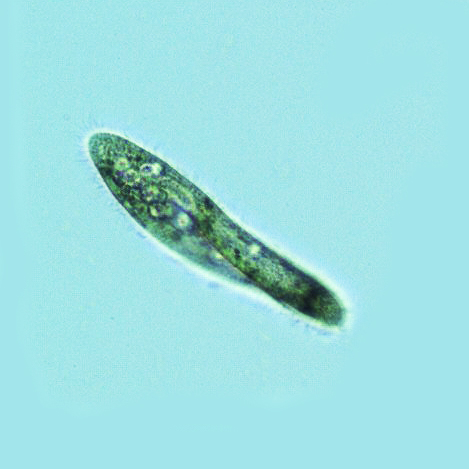Paramecium tetraurelia, a ciliate, with oral groove visible
