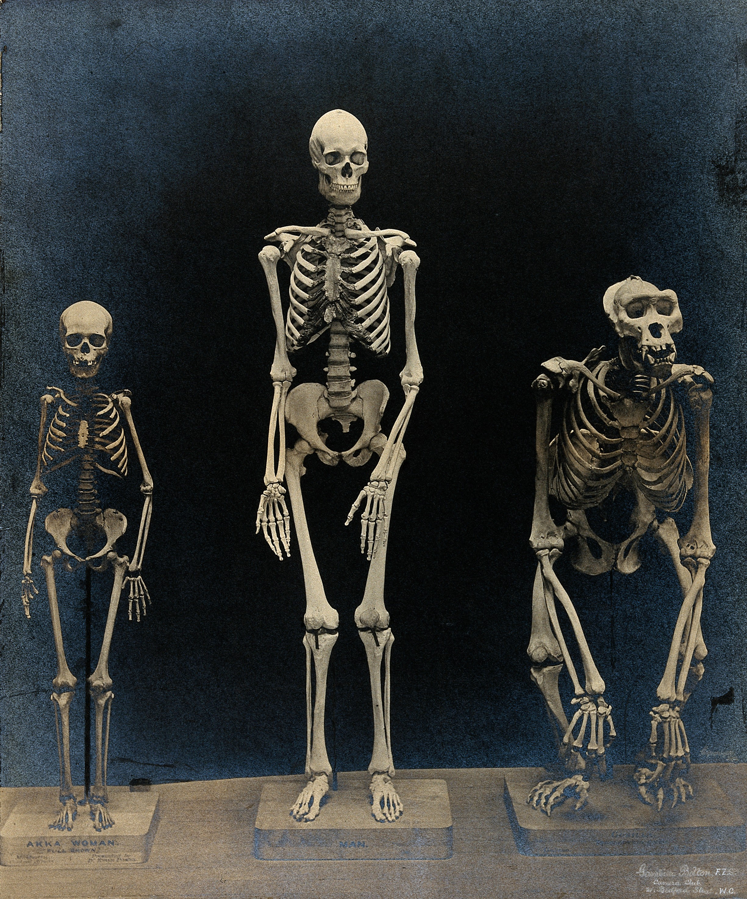 Skeleton_of_a_man%2C_a_woman_(pygmy)_and