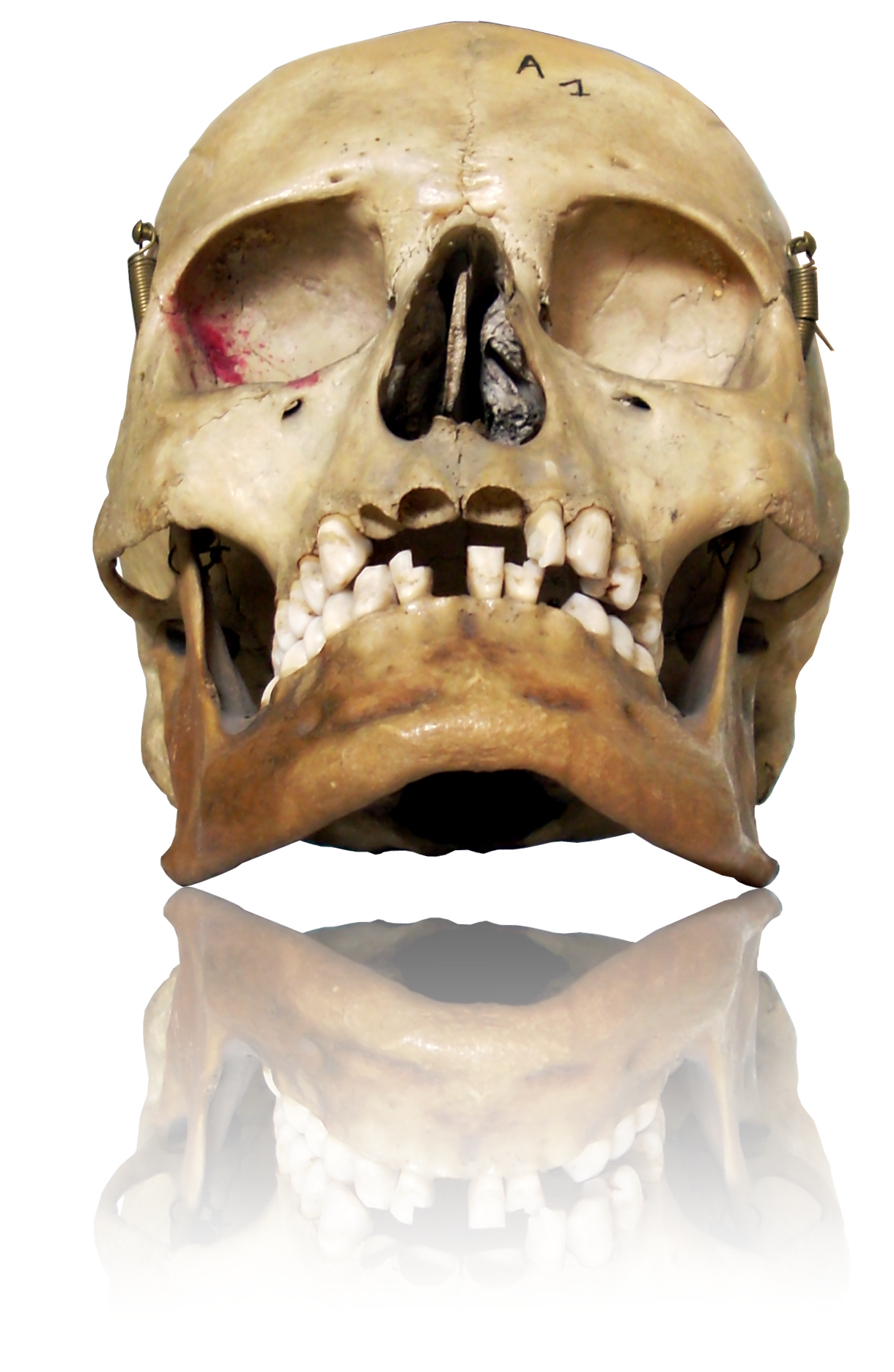 Real Human Skull Natural