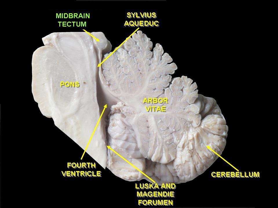 http://upload.wikimedia.org/wikipedia/commons/4/4c/Slide4qq.JPG