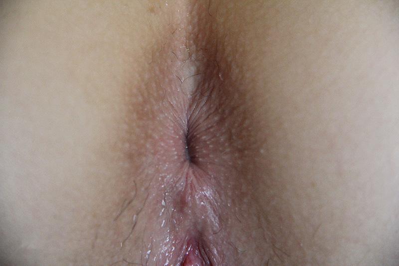 kak-otlichit-anus-netronutiy-foto-porno-issledovanie-anusa