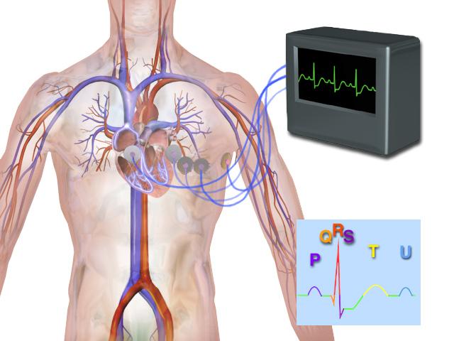 Blausen 0339 Electrocardiogram