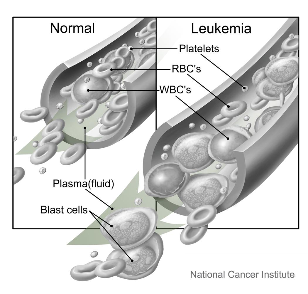 Bay Area Leukemia Treatment