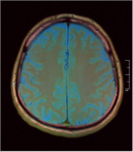 Brain MRI 0211 05.jpg