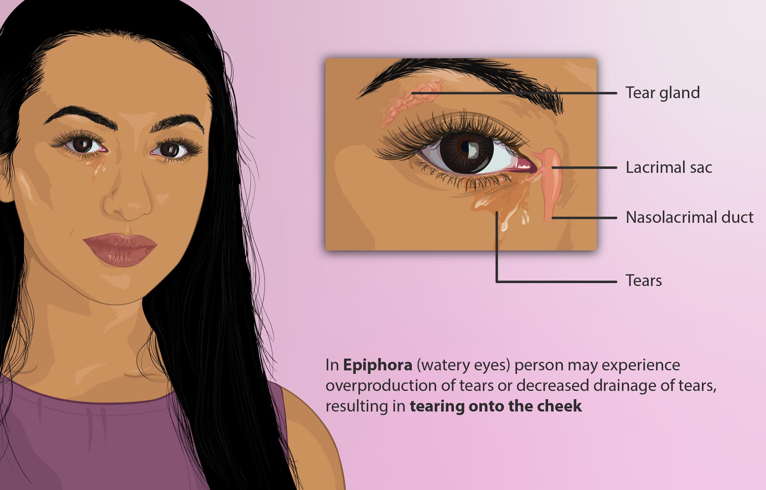 Epiphora (medicine) - Wikipedia