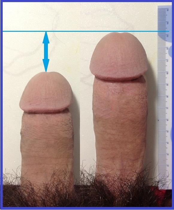 Authoritative message Flaccid penis measurements