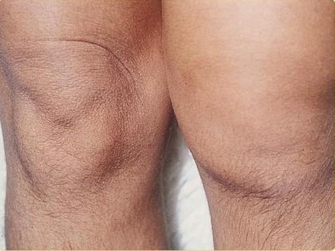 Inflamación de rodilla