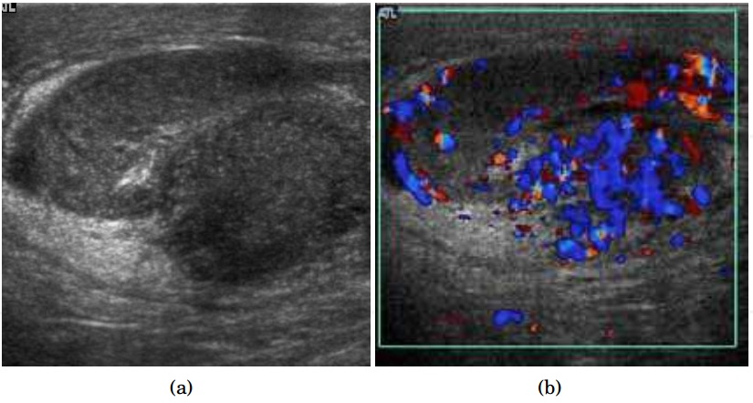 (a) Transverse sonography shows enlargement of the epididymis with  hypoechogenicity noted over the testis and epididymis associated with  scrotal wall ...