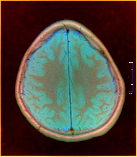 Brain MRI 0015 15.jpg