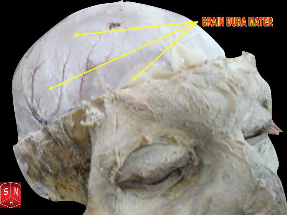 File:Brain dura-mater 1.jpg - Wikimedia Commons