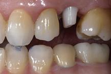 corona su impianto dentale zirconia