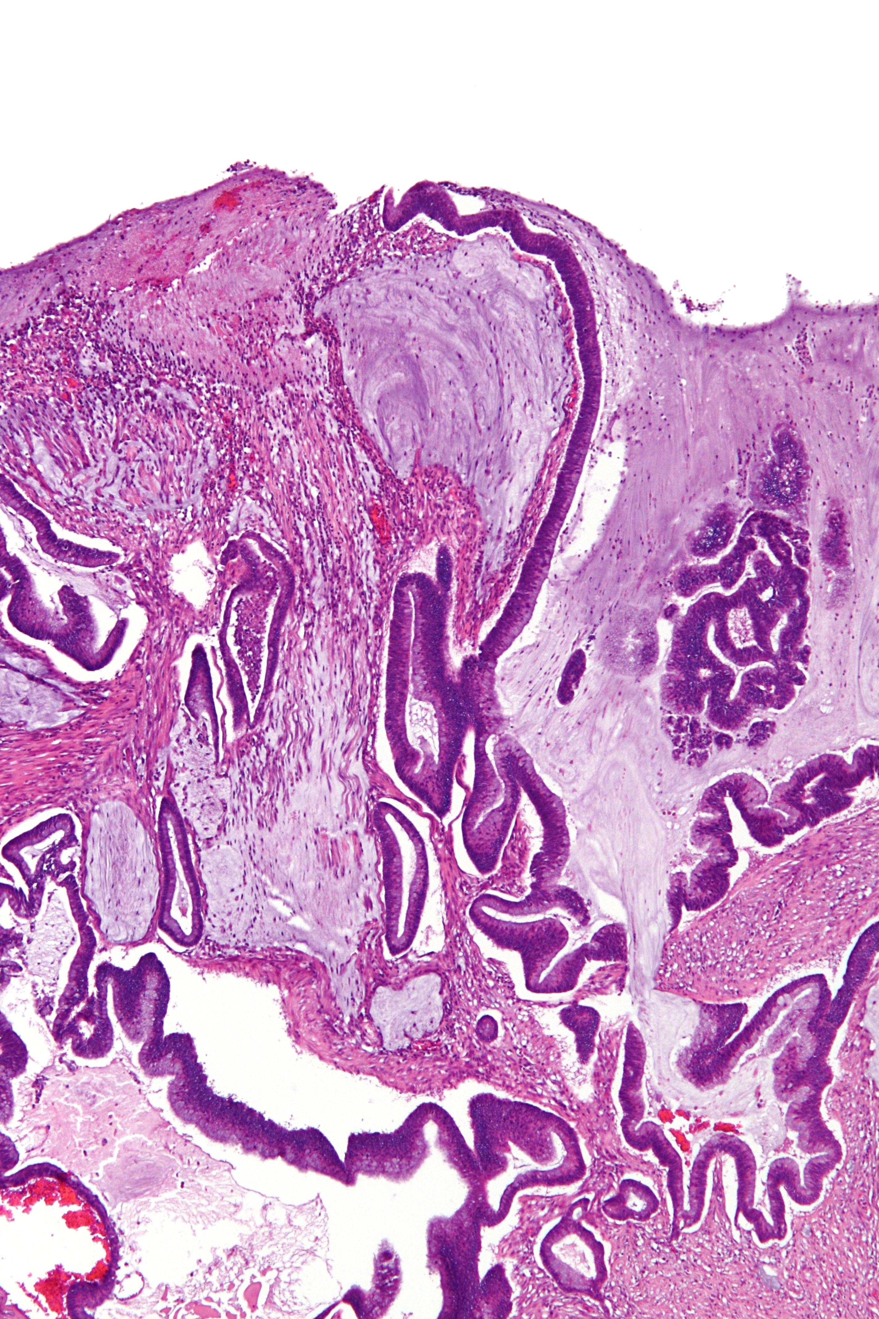 Mucinous colorectal cancer. Meniu de navigare