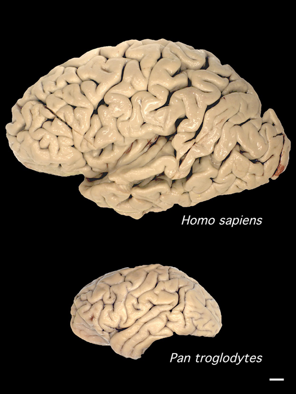 file human and chimp brain png   wikimedia commons