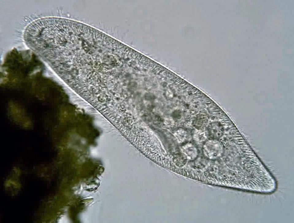 Mikroskopický záber črievičky