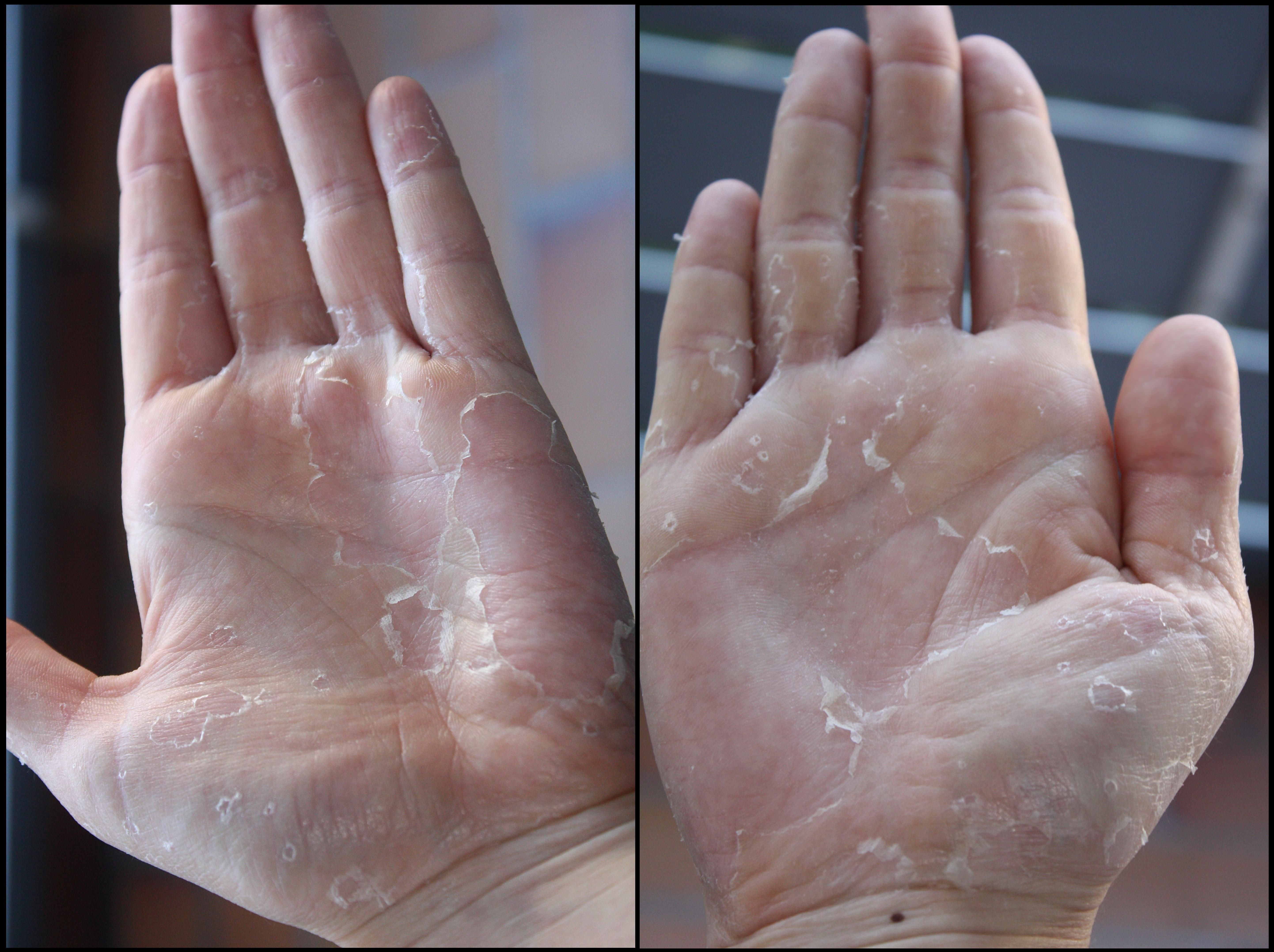 Home remedies for dry red cracked hands