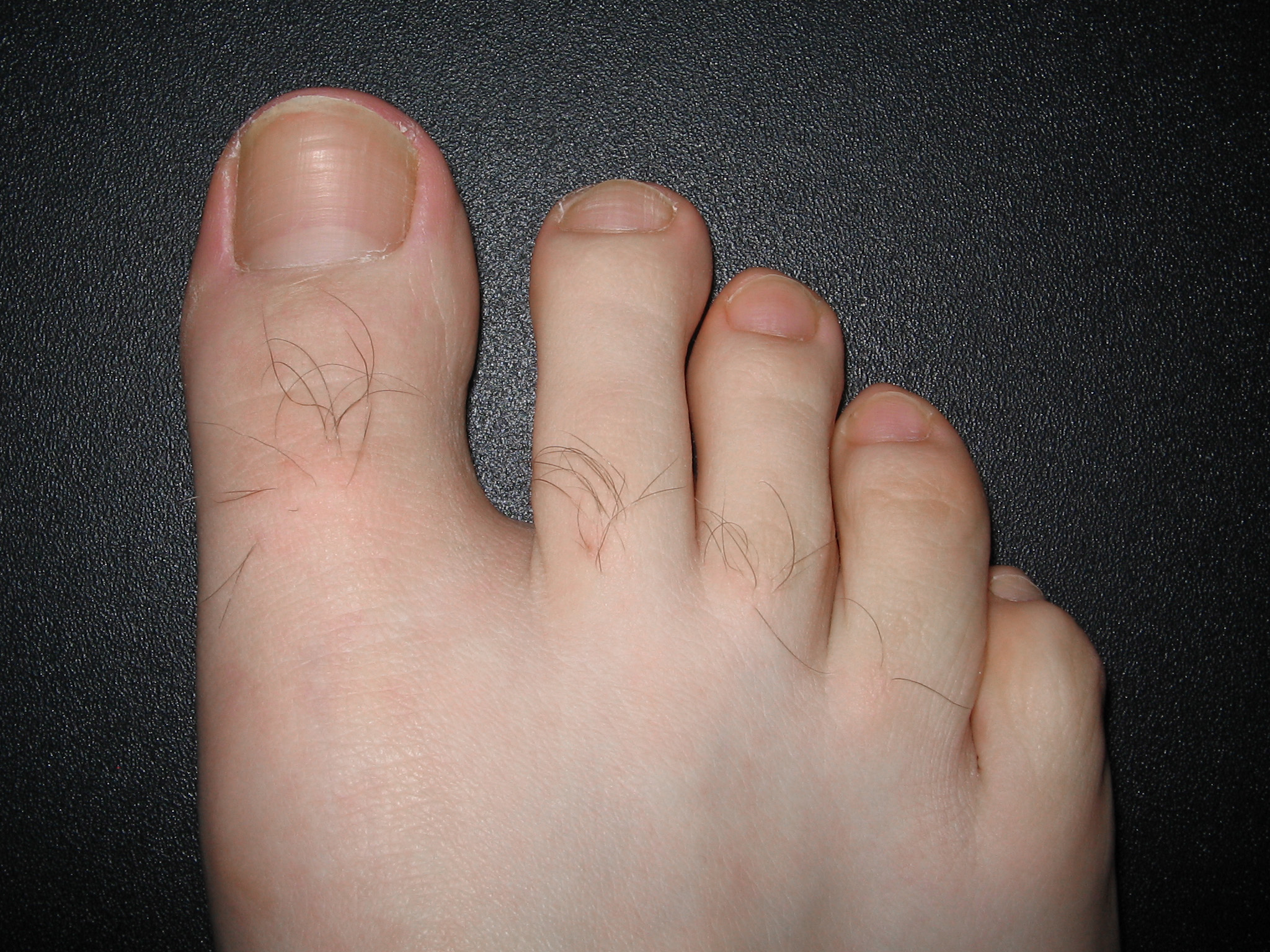 Removal Old Toenail Or Let It Fall Off Naturally