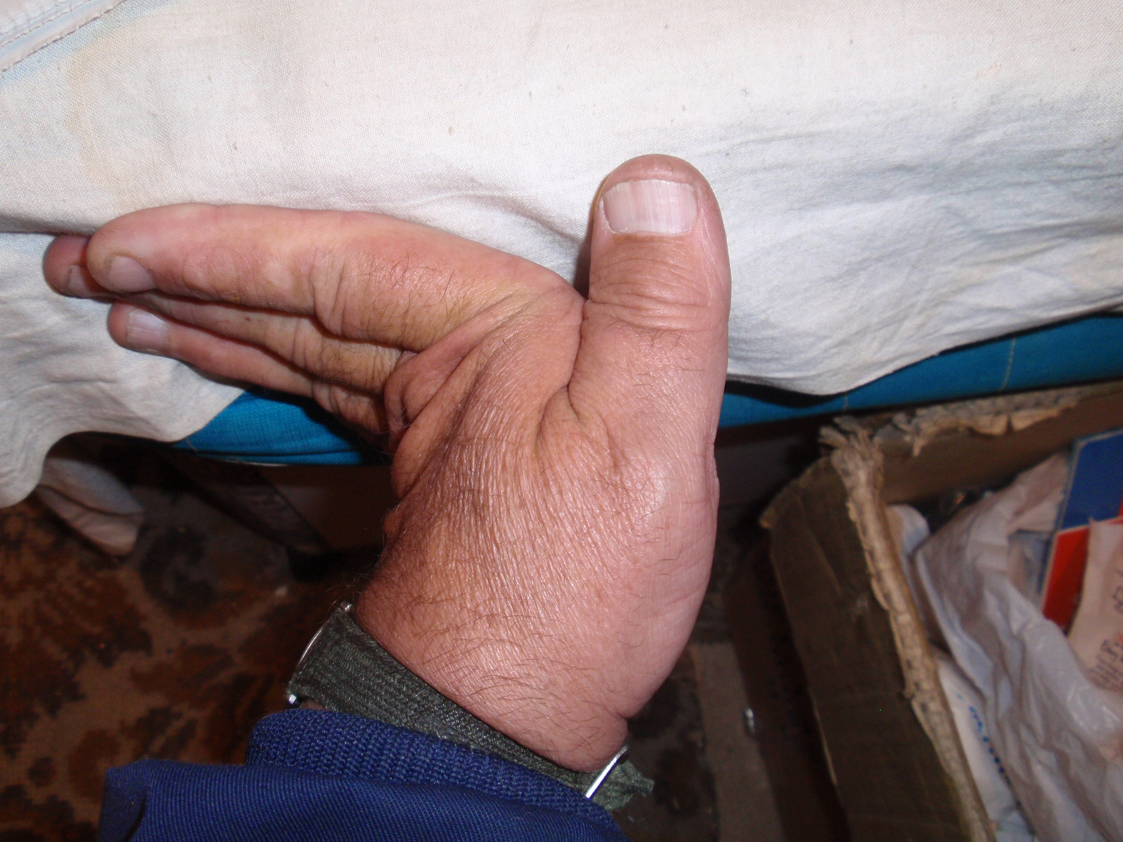 Hypermobile fingers -- they bend backwards to 90 degrees. By Anthony Appleyard [Public domain], via Wikimedia Commons